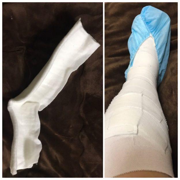 肉離れの治療のため足首を固定